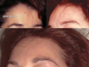 Before and After Surgery Repair FAMI