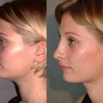 Rhynoplasty Nose
